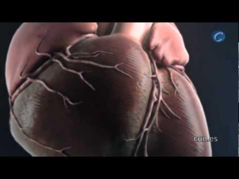 Cómo reducir la hipertensión