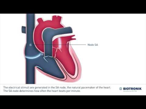 La pérdida de peso en la hipertensión