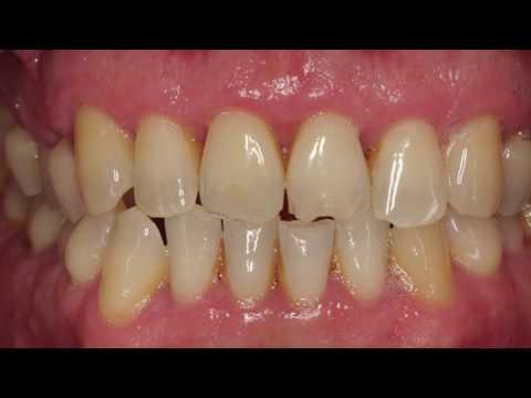 Smile design with Orthodontics and dental aesthetics