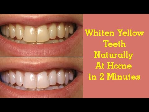 In Just 2 Minutes Turn Yellow Teeth To Pearl White And Shine How
