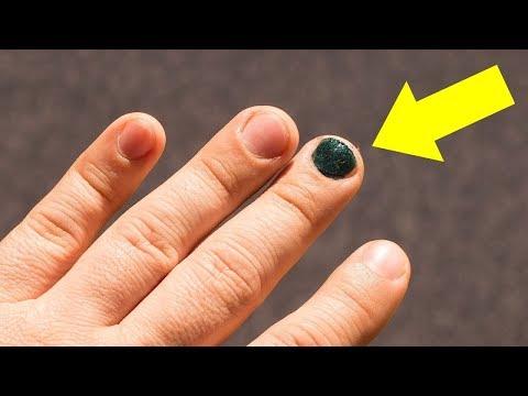 Kann gribok des Nagels von der Gründung des Fingers sein