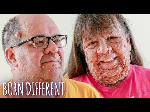 Husband & Wife With Thousands Of Tumours   BORN DIFFERENT