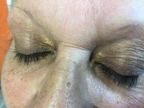 Le masque pour la peau sensible de la personne après 30