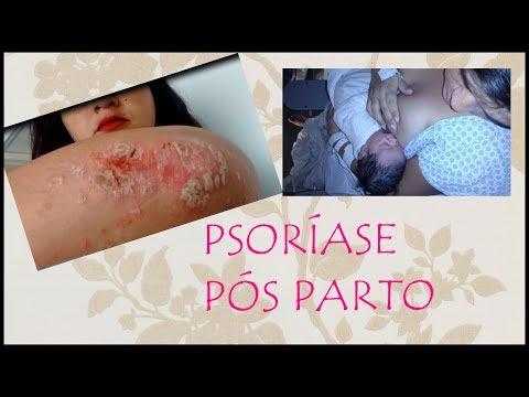 Duração de eczema em
