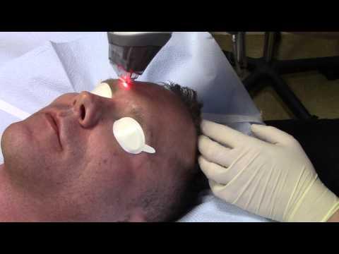 Aging Skin, Sun Spots, & Fine Lines