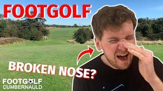 BROKEN NOSE PLAYING FOOTGOLF?! Footgolf | Cumbernauld Footgolf Course