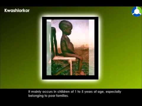 Video KWASHIORKOR