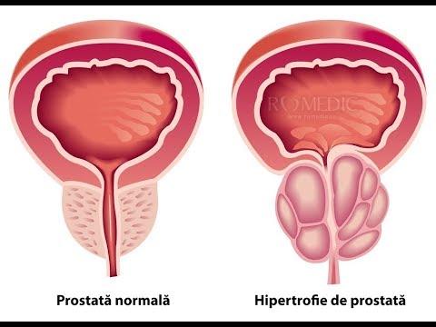 Prostatita fără prescripție medicală