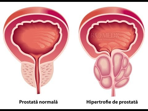 Prostată normală