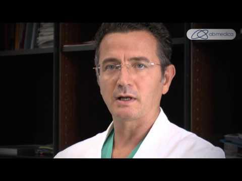Il prezzo del laser verde per adenoma prostatico