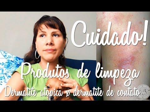 Eczema microbial de um lecheniye.prichina de uma doença