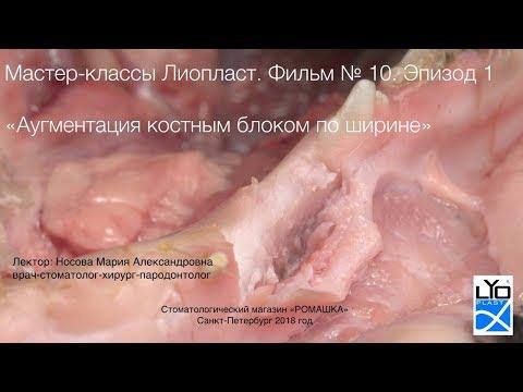 Мастер-класс Лиопласт 10.1 Аугментация альвеоляра костным блоком по ширине