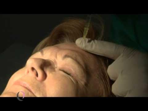 Vidéo sur botokse les personnes