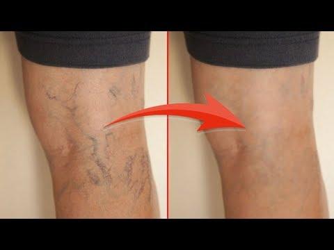 Inflamația pielii în tratamentul venelor varicoase