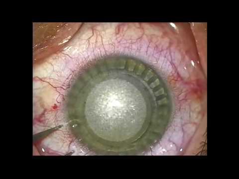 Глазная болезнь близорукость и дальнозоркость