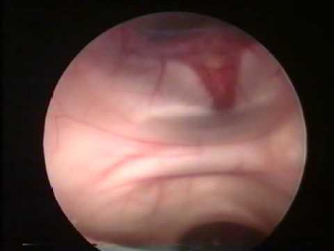 Całkowite Usunięcie Torbieli W Czwartej Komorze Mózgu Przy Użyciu Endoskopii