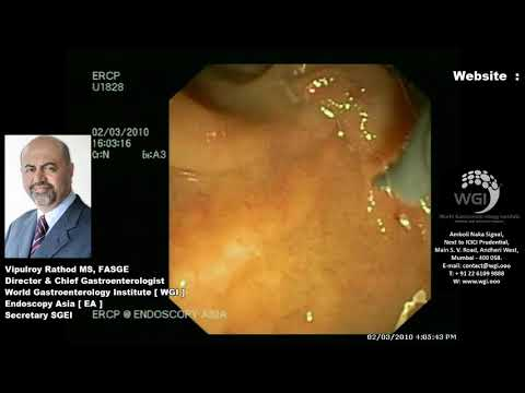Causes of inverted papilloma nasal