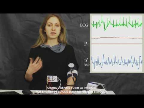 Métodos para el tratamiento de la presión arterial