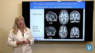 How Does a Child's Brain Develop? | Susan Y. Bookheimer PhD | UCLAMDChat