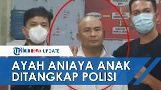 Ayah yang Aniaya Anaknya di Medan Ditangkap Polisi, Belum Ditetapkan sebagai Tersangka