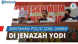 Polisi Bantah Kecurigaan Keluarga: Foto saat Telentang Darahnya Banyak, tapi Tak Mungkin Disebarkan