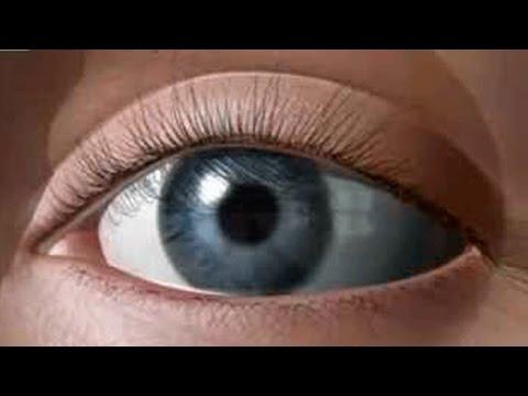 Лазерная коррекция зрения уфа казакбаев