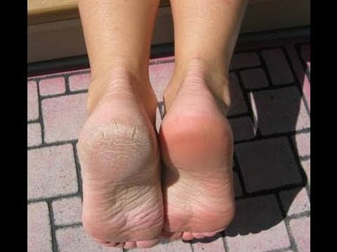 Video How I cure my dry feet