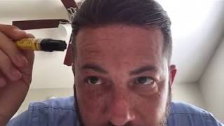 Men's hair system review Poly thin skin day 10