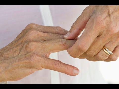 Qué hacer si una hernia en la columna cervical