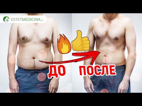 Diet penurunan berat badan Ducane sebelum dan sesudah foto