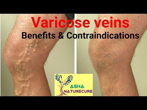 Pathogenesis di vene varicose