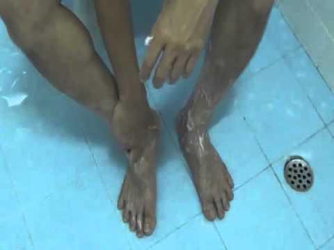 การเจริญเติบโตบนนิ้วกลางของขาของเขาจากด้านบนรูปภาพ