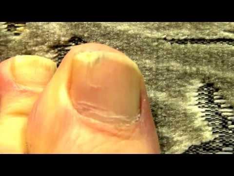 Eksoderil die Analoga des Präparates für die Nägel