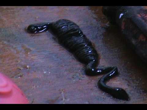 Kung paano upang matukoy ang pagkakaroon ng mga parasites sa blood test