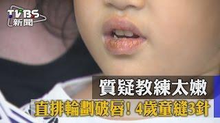 獨家/直排輪劃破唇!4歲童縫3針 質疑教練太嫩