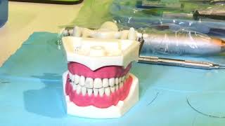 ADC OSCE , Splinting Of Avulsed Tooth