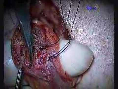 Microsurgical Varicocelectomy for Varicocele