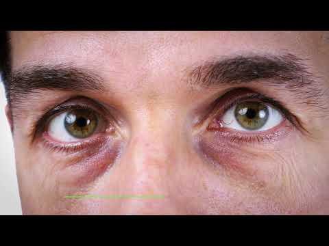 Лечение на аденом и простатит прополис тинктура