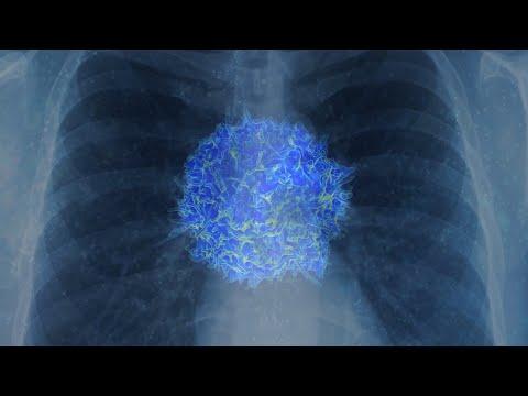 कैसे COVID -19 प्रणाली आप अपने प्रतिरक्षा के खिलाफ बदल जाता है