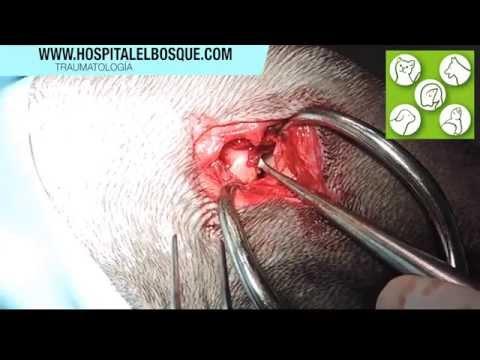 Cúrcuma para articulaciones con artritis recetas