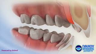 Teeth Before and After Overbite Fix with Braces