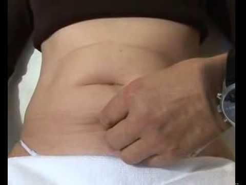 Die Ursache für Rückenschmerzen bei 12 Wochen der Schwangerschaft