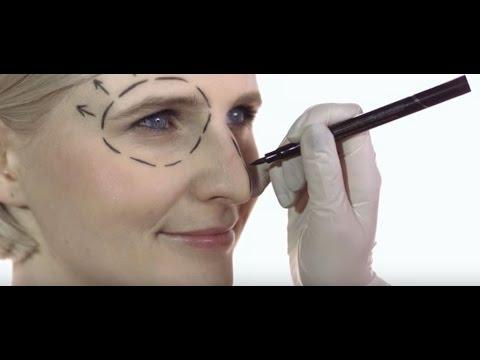 כל מה שרצית לדעת על ניתוח מתיחת פנים: ד