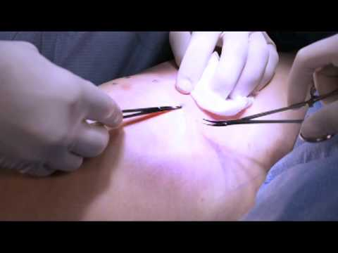 ลิ่มเลือดอุดตันหลอดเลือดดำลึกของการผ่าตัดขา
