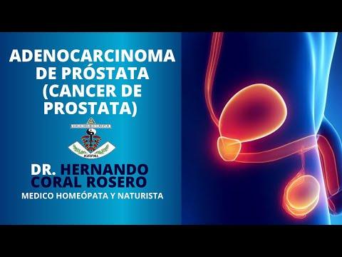 Parénquima de la próstata con microcalcificaciones