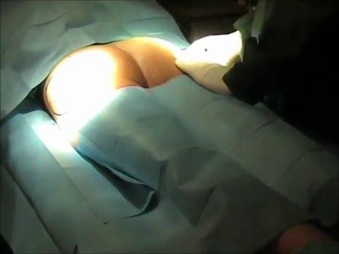 Dnepr ecografia della prostata