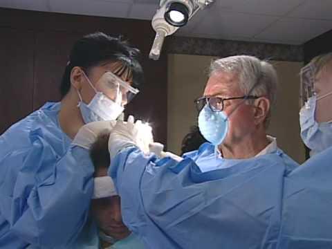 Hair Transplant Procedure by Bosley Medical