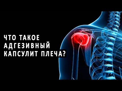 Что такое адгезивный капсулит плеча и как он лечится?