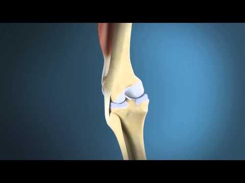 Die Ursache für Rückenschmerzen in der Mitte