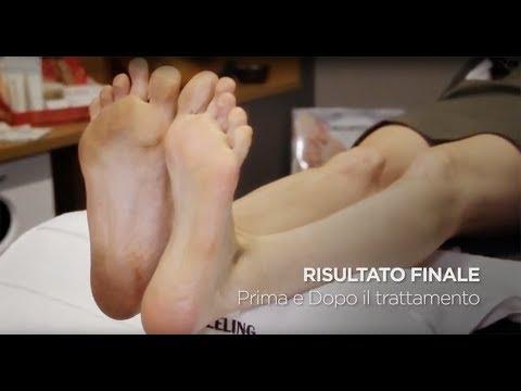 Massaggio per il piede del bambino a piede valgusny
